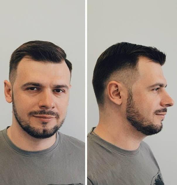 Short Comb Over + Temple Fade - Haircuts For Balding Men