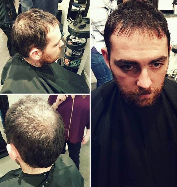 The Thin Cut - Haircuts For Balding Men